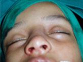 nasalcorrection1