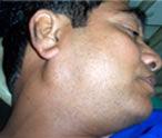 salivarygland1